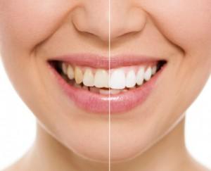 tanden-bleken-verschil-beautyathome